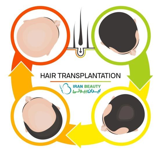 کاشت مو چگونه انجام می شود ؟