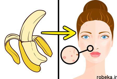 applications2 banana2 peel2 کاربردهای پوست موز