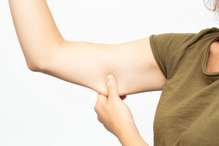 لیفت بازو, لیفت بازو چیست, جراحی لیفت بازو
