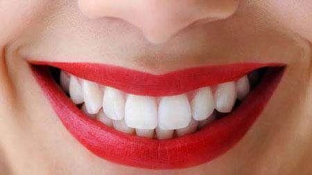 attractive smile makeup 2 چگونه با آرایش لبخند جذاب داشته باشیم؟