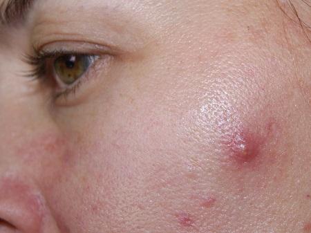 cystic acne 02 علت و روش های درمان آکنه کیستیک یا جوش کیستیک