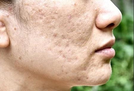 cystic acne 04 علت و روش های درمان آکنه کیستیک یا جوش کیستیک