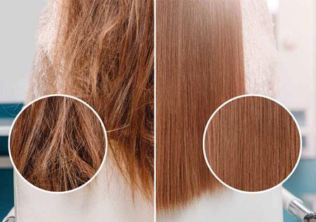 %name تراپی مو چیست؟ + معرفی انواع آن
