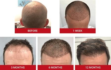 %name راهکارهایی برای پیشگیری و درمان عفونت بعد از کاشت مو