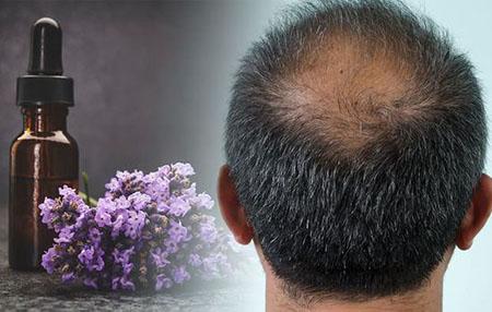 %name فواید روغن اسطوخودوس برای مو + مضرات و نحوه استفاده